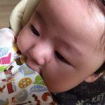 赤ちゃんのほっぺかぶれの原因と対処法!薬無しで治すには?